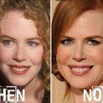 Nicole Kidman Facelift Surgery
