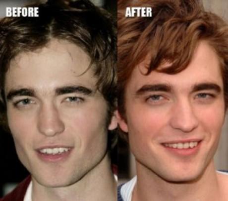 Robert Pattinson Plastic Surgery