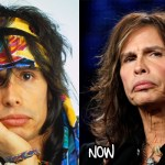 Good and Bad Result Steven Tyler Botox Plastic Surgery
