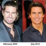 Tom Cruise Facelift Surgery
