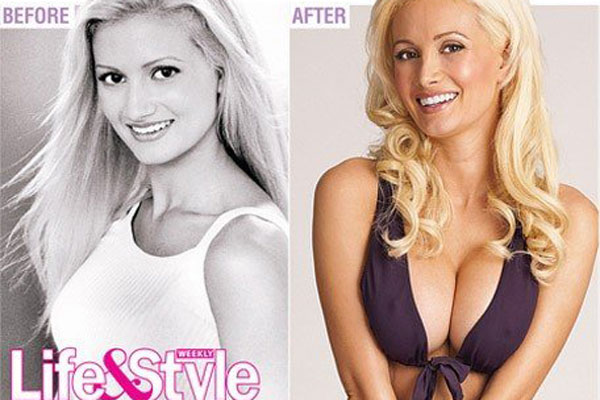 Holly Madison Boob Job