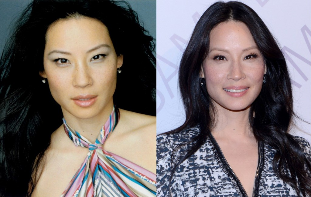 Lucy Liu Botox Surgery