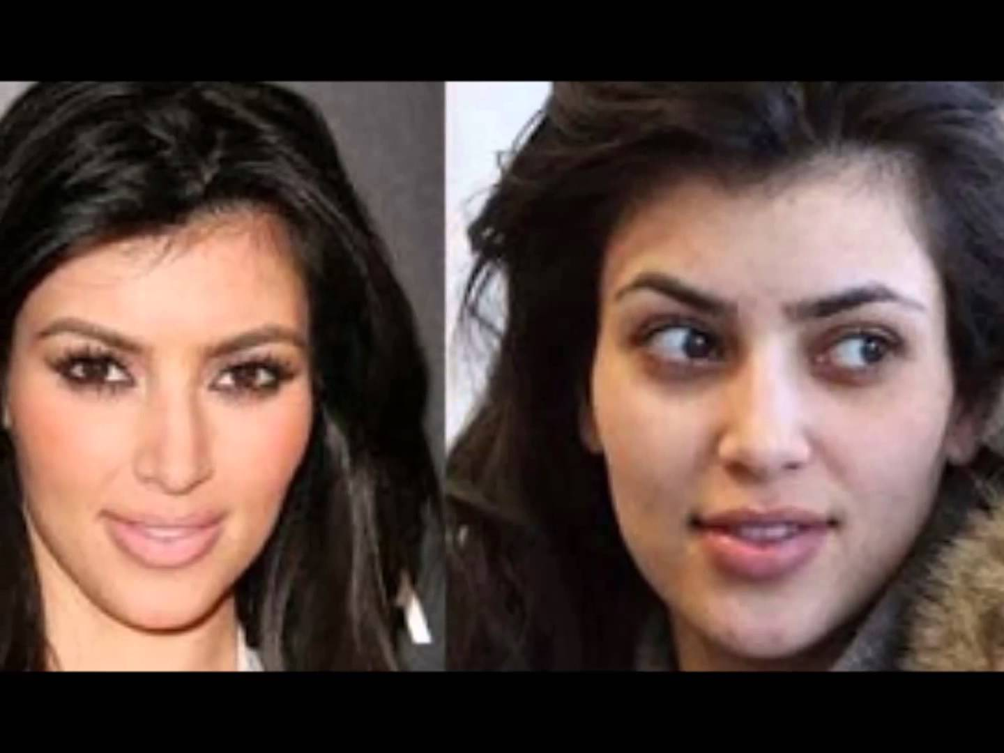 5 hollywood actress horrible face overdoing plastic surgery