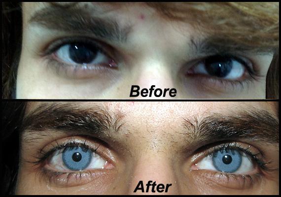Eye Color surgery