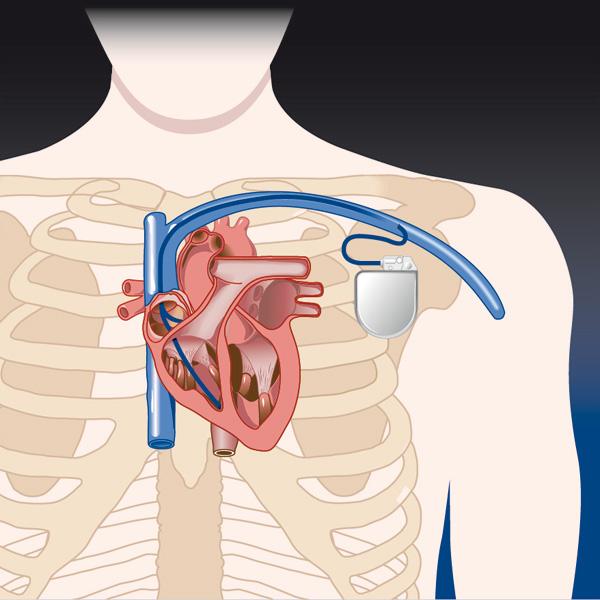 Heart Peacemaker Surgery Risk