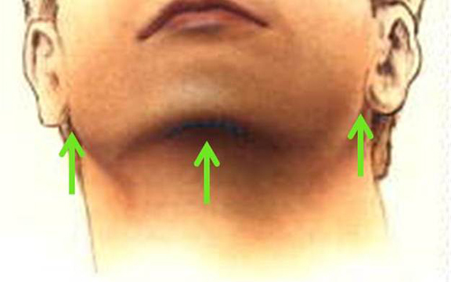 Pretty Chin Liposuction Procedure