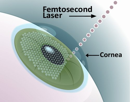 Laser Femtosecond Surgery Procedure