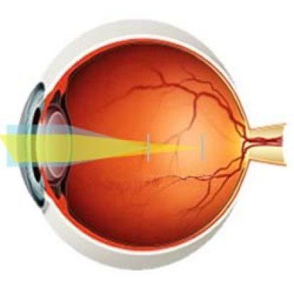 Lasik Eye Surgery Risks
