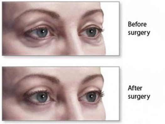Eye Bag Surgery Procedure