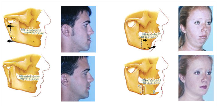Jaw Surgery Risk and Complication