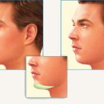 Jawline Procedure