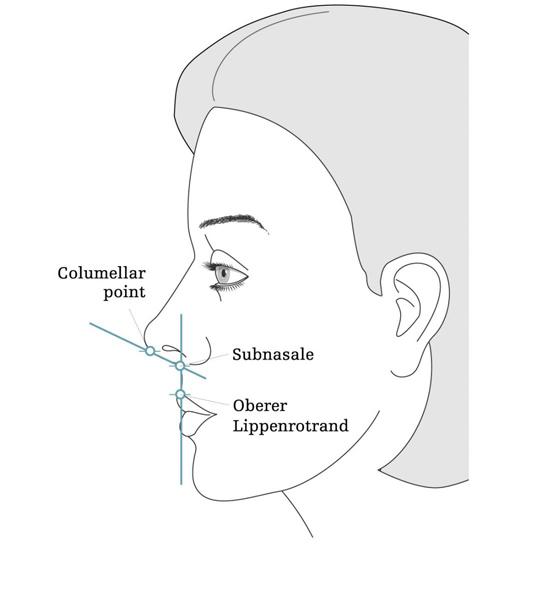 Nasal Harmonization