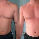 Concept of Male Breast Reduction Procedure