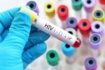 巴西衛生部:13.5萬人感染HIV卻不自知
