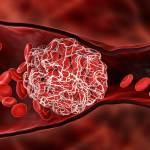AZ疫苗爆罕見血栓找到可能原因了 神秘抗體驚現詭異行徑