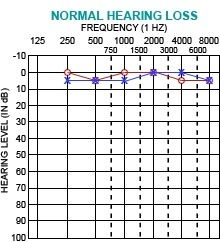 Audiogram of Hearing (6/6)