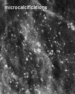 more-breast-microcalcifications