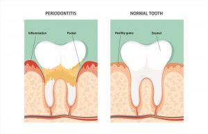 cancer du sein parodontale