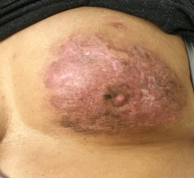 Locally advanced breast cancer 2