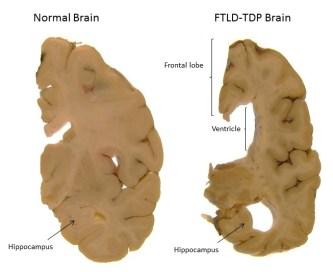 http://cdn.dementiablog.org/wp-content/uploads/2014/10/Normal-brain-vs-FTD-brain.jpg