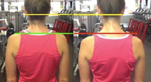 shoulder-comparison-level-ears-unlevel-shoulders