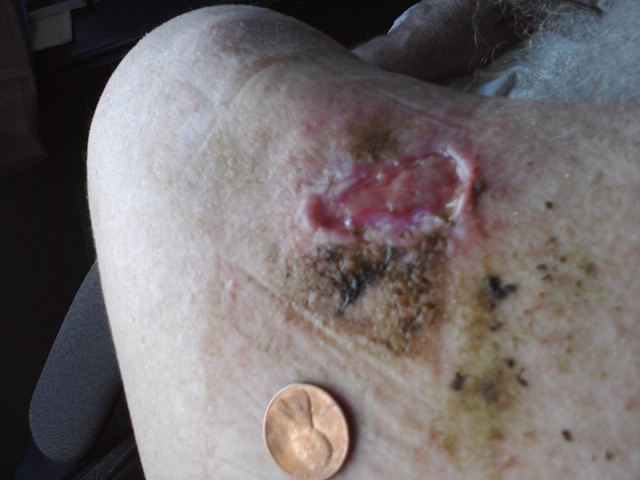 Phoenix Tears Healing a Diabetic Ulcer (updated Journey) (5/6)