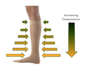 gradual-compression-stockings