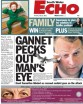 Gannet pecks out man's eye - South Wales Echo