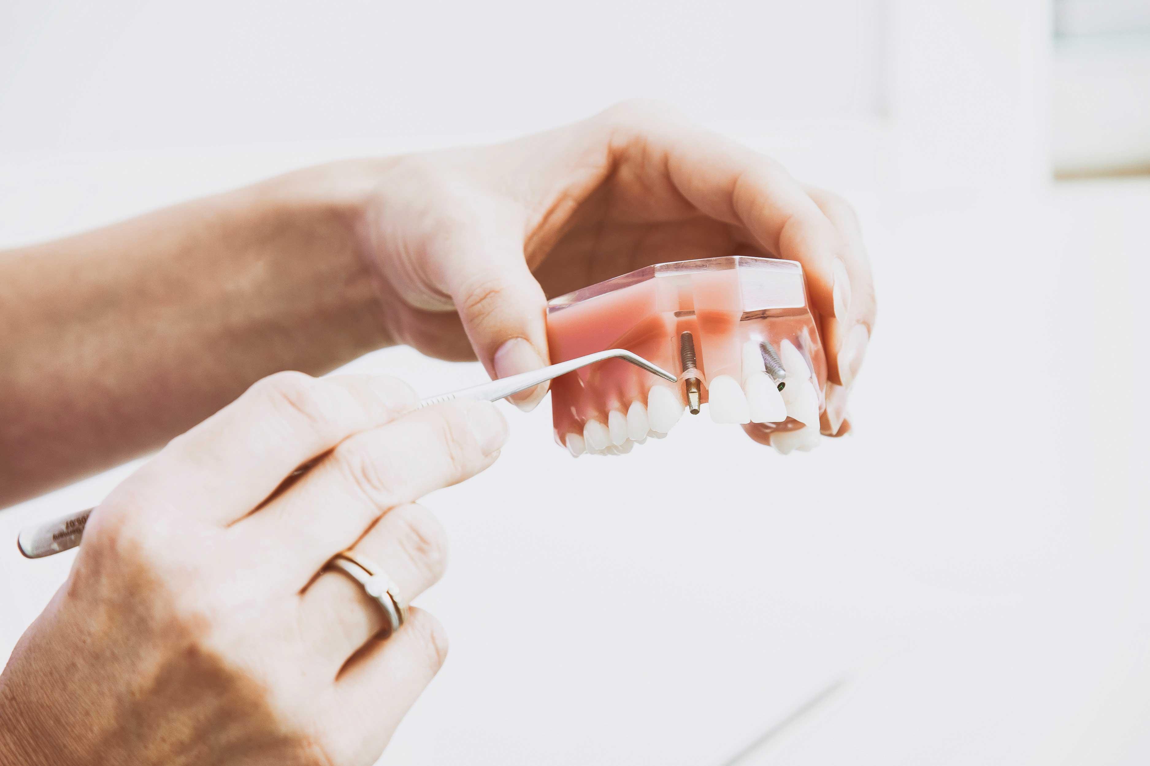 novi-trendovi-u-medicini-dentalni-turizam