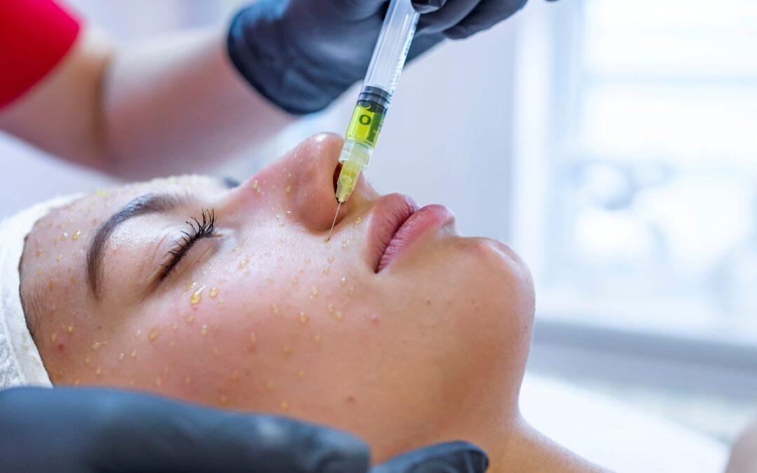 Mesoterapia facial con vitaminas y ácido hialurónico.