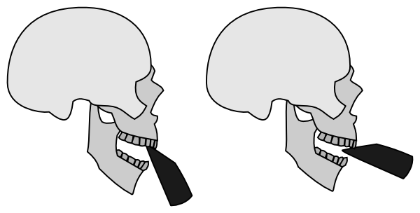 Left: clarinet jaw position (more open). Right: saxophone jaw position (less open).