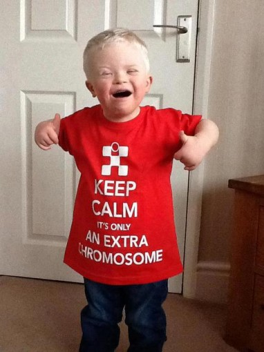 Keep Calm, It's Only An Extra Chromosome