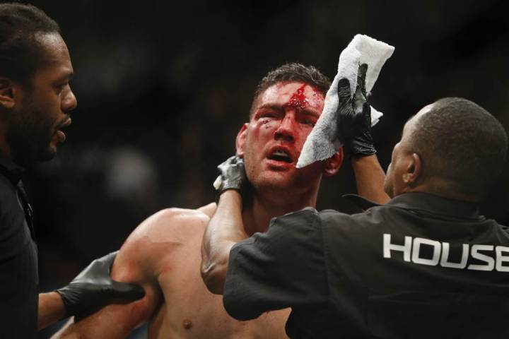 Chris Weidman lost for the first time in his MMA career at UFC 194, getting knocked out by Luke Rockhold to lose the middleweight strap