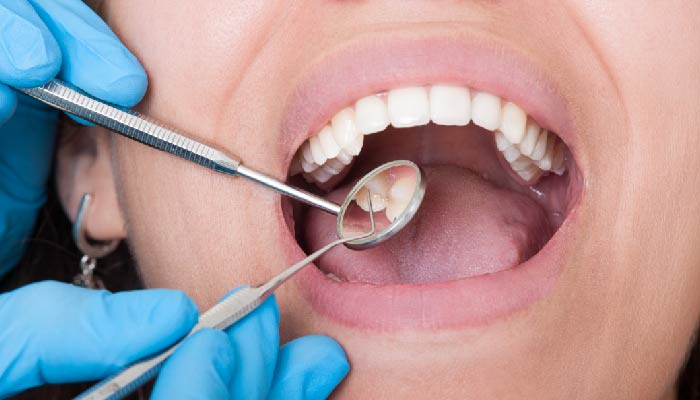 Factors Affecting Root Canal Longevity