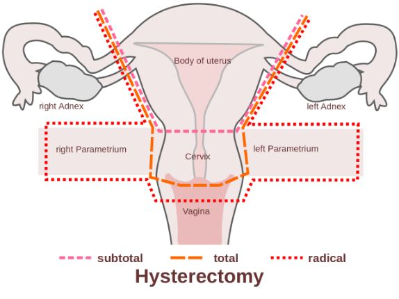 Sore ovaries after hysterectomy