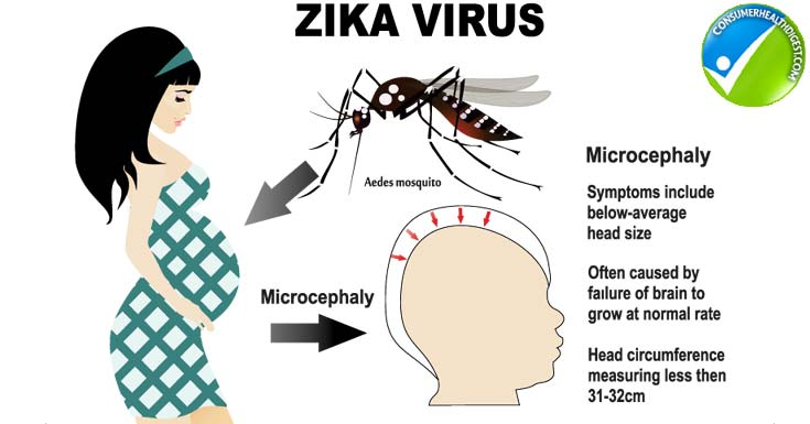 Zika virus and pregnancy - Consumer