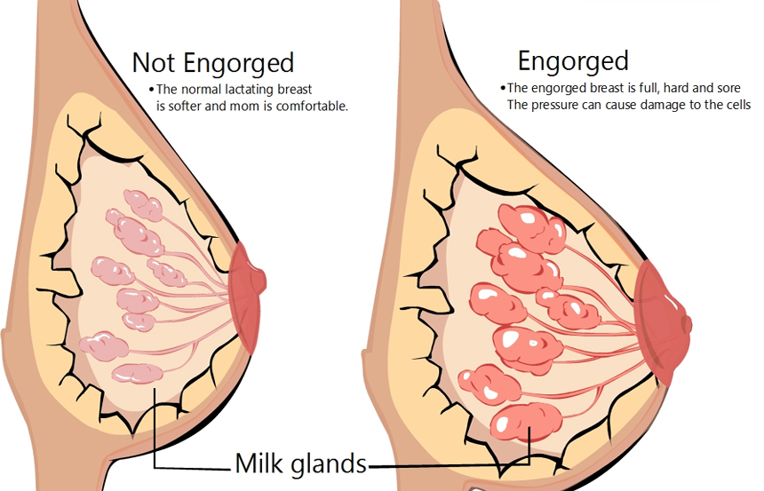 Engorged breast