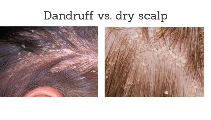 Dandruff vs. dry scalp