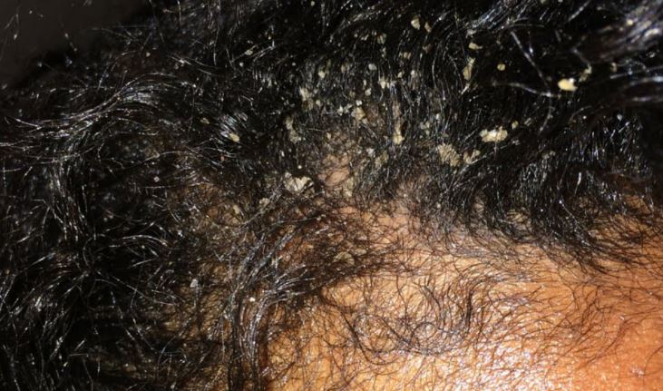 Is it dandruff or a dry scalp