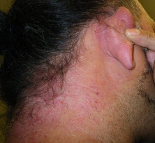Rash and itchy skin from hypoallergenic hair dye