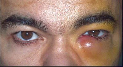 Inflamed or itchy tear duct swelling due to infection