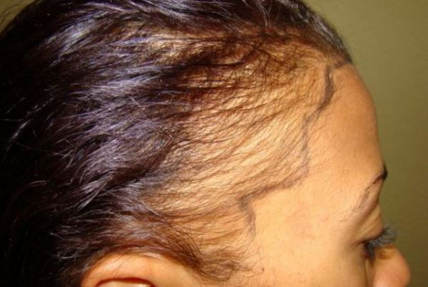 Receding hairline in women causes