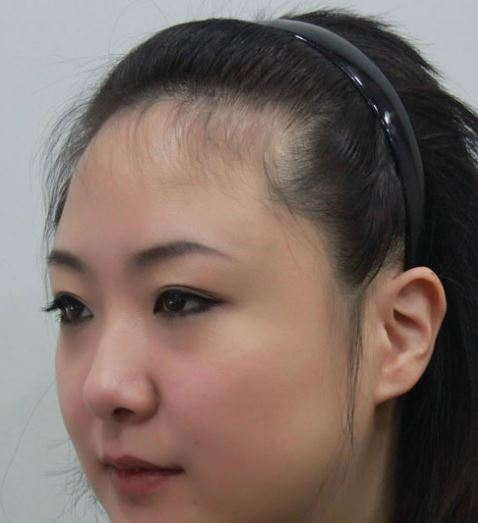 Receding hairline in women