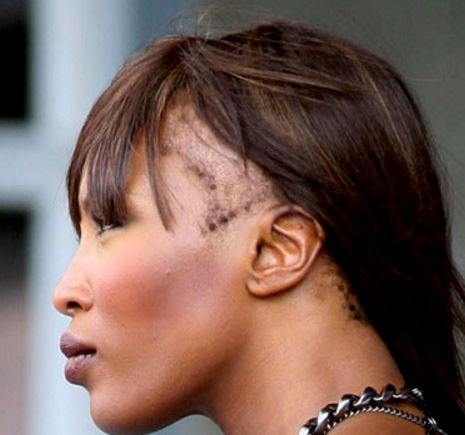 Receding hairline in young black women on forehead and temples