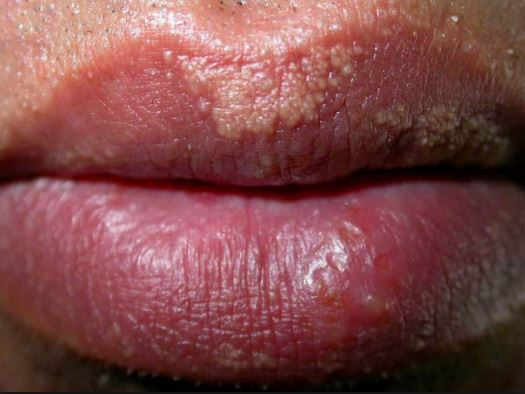 Clusters of small white bumps on lips
