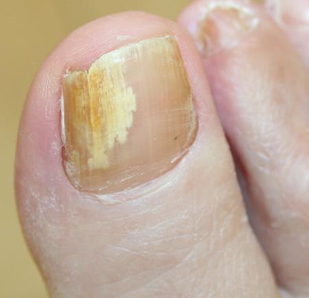 yellow-cracked-toenails