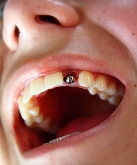 Gum piercing