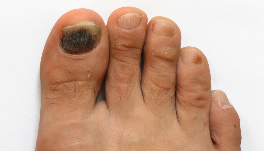 Black Toenails: Meaning, Causes, With No Pain & How to Get Rid of ...