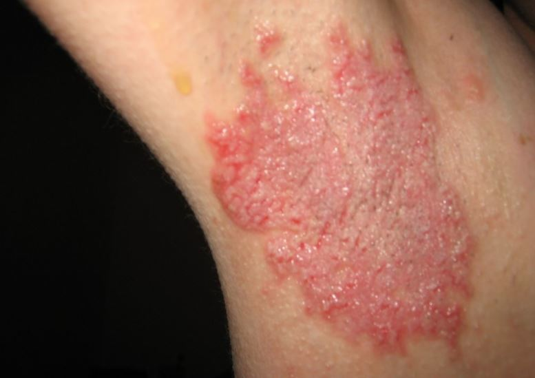 Red rash under armpit