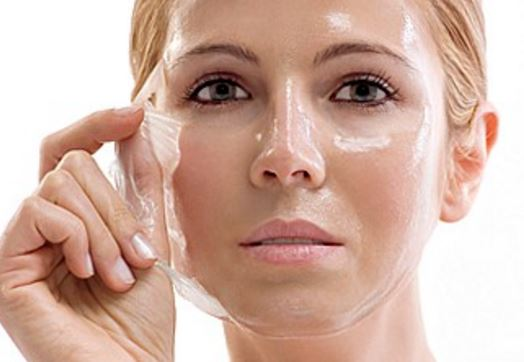 Chemical peels are effective in removing pimple marks